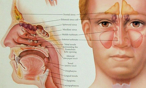 Can sinus infection cause tinnitus